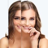 Holistic treatment of acne in Delhi